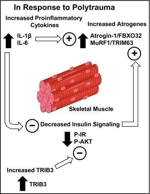 Skeletal Muscle Atrogene Expression And Insulin Resistance In A Rat Model Of Polytrauma