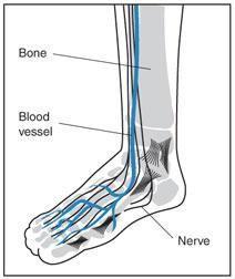 Diabetes Foot Veins