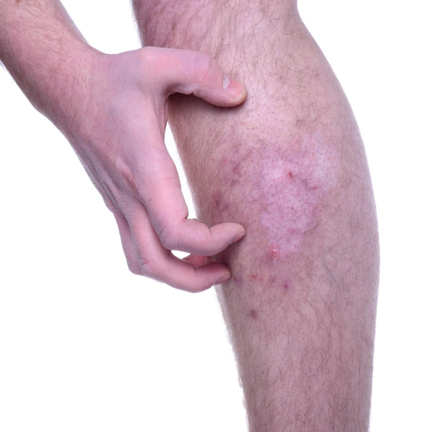 Itchy Skin May Be A Warning Sign Of Type 2 Diabetes