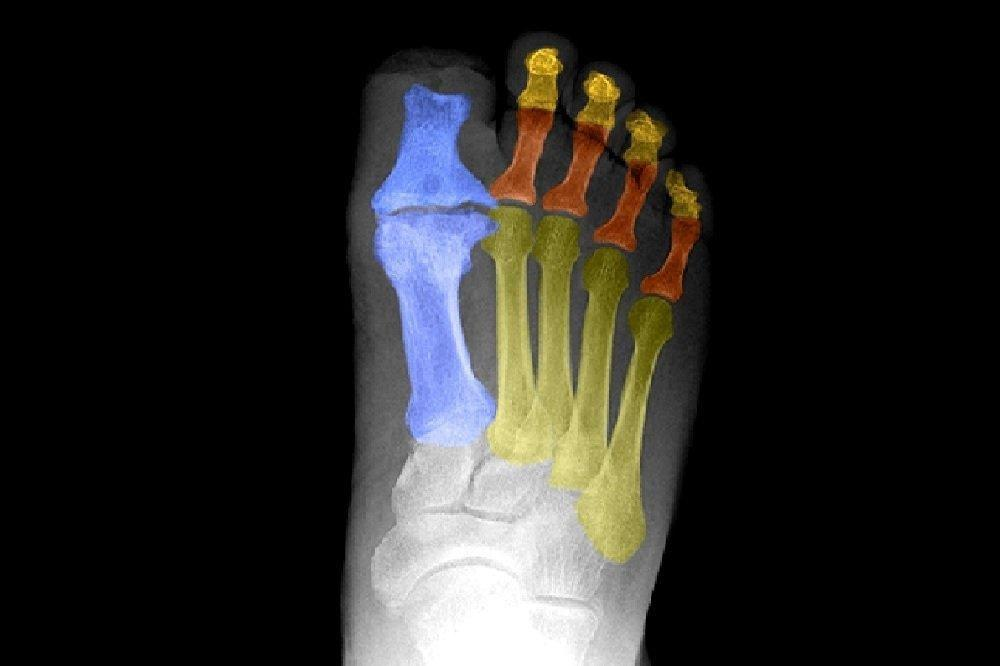 Diabetic Peripheral Neuropathy: An Overview