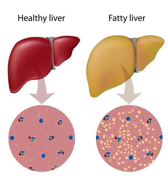 How To Reverse Prediabetes Naturally