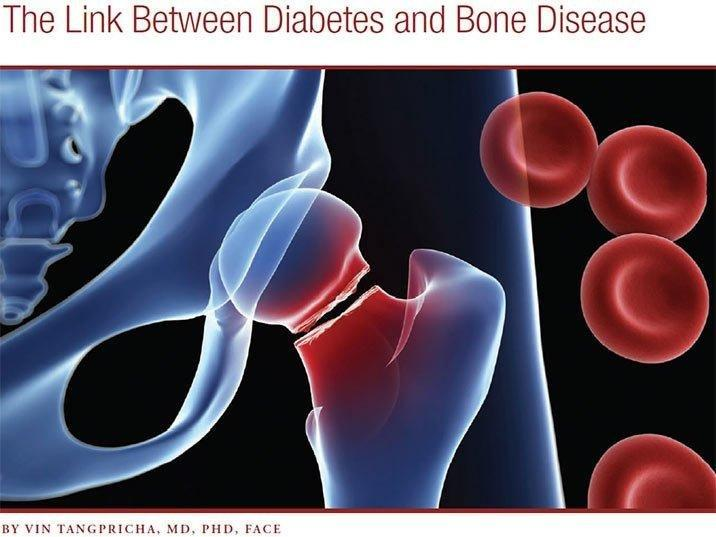 Just What Is The Link Between Diabetes Mellitus And Osteoporosis And Bone Fractures?