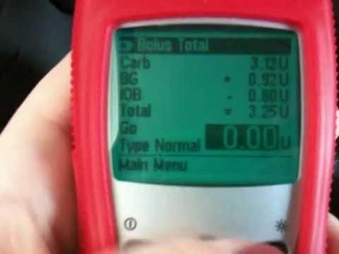 Remote Bolus | Medtronic Diabetes