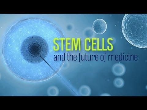 Stem Cell Treatment For Diabetes Type 2 In Bangalore