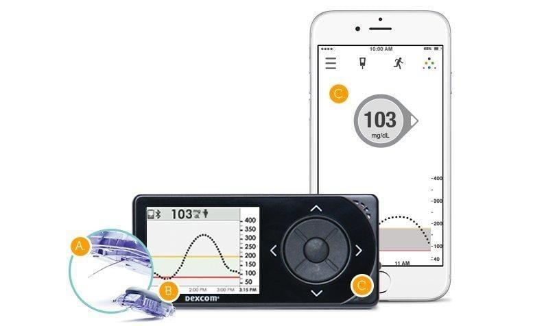 Dexcom Adds Ascensias Glucose Meter To Cgm Bundle