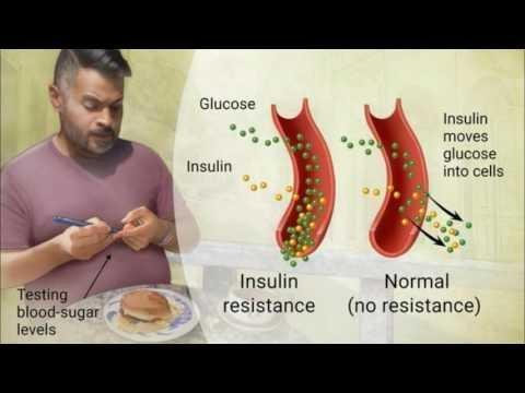 Diabetes Update: Mitochondrial Diabetes: Another Non-insulin Resistant Adult Onset Diabetes