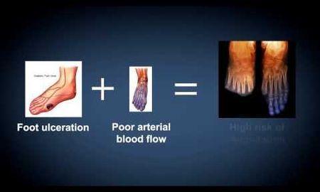 Gout Diabetes Amputation