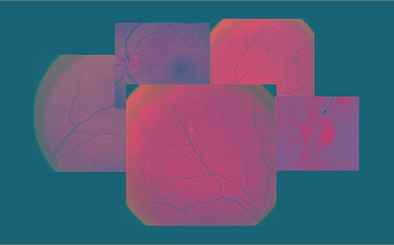 Diabetic Retinopathy Grading And Classification