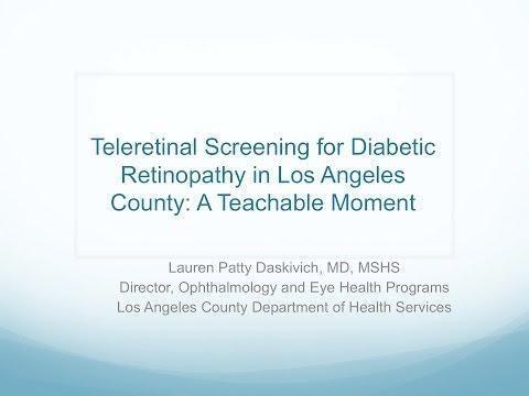 Teleretinal Imaging For Diabetic Retinopathy