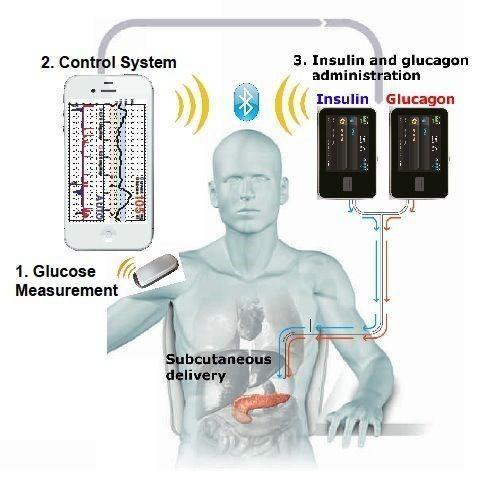 Omnipod Artificial Pancreas