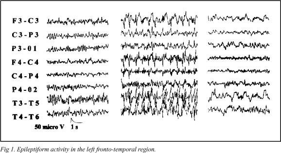 Partial Seizures And Aphasia As Initial Manifestations Of Non-ketotic Hyperglycemia