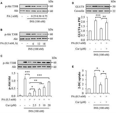 Frontiers | Curcumin Improves Palmitate-induced Insulin Resistance In Human Umbilical Vein Endothelial Cells By Maintaining Proteostasis In Endoplasmic Reticulum | Pharmacology