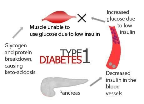Diabetes Type 1 - Stem Cells Treatment Clinic