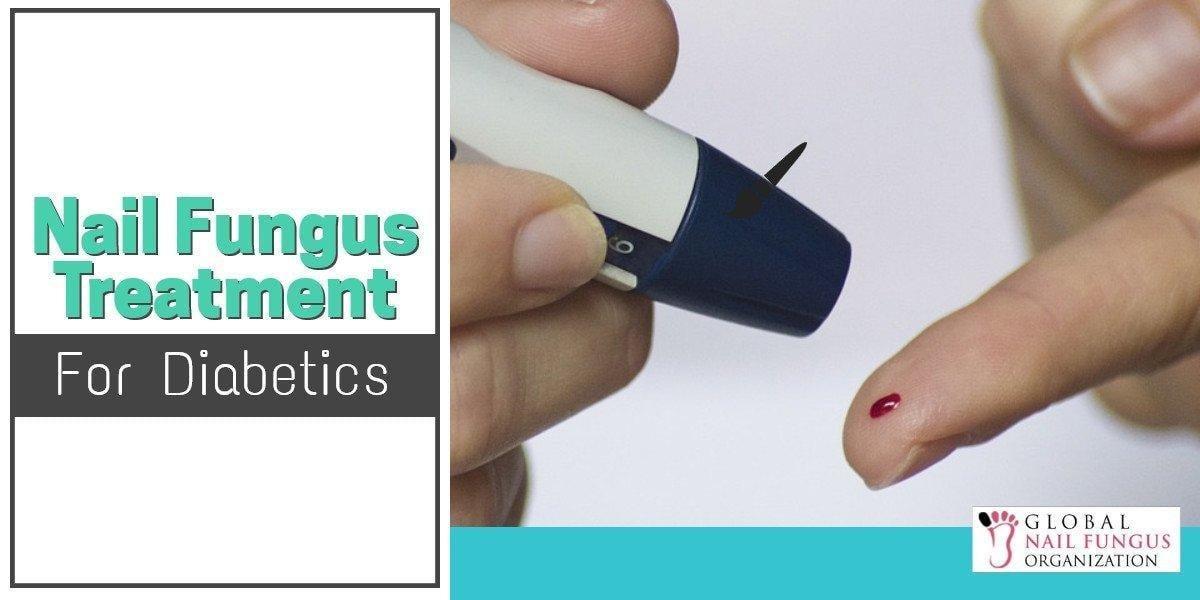 Nail Fungus Treatment For Diabetes
