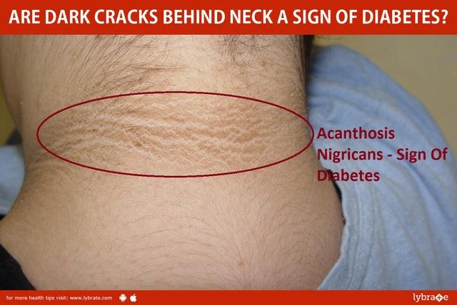 Are Dark Cracks Behind Neck A Sign Of Diabetes?