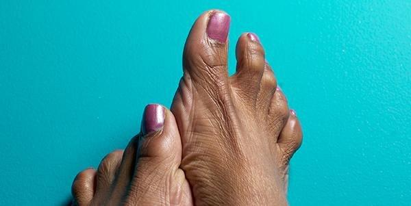 Why Do You Have To Look After Your Feet When You Have Diabetes?