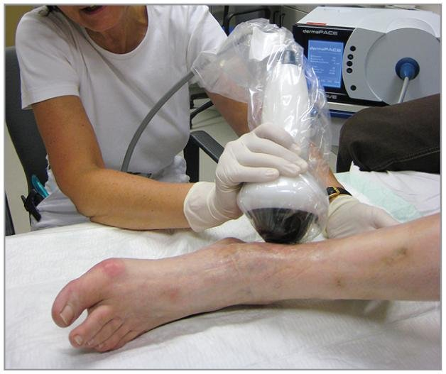 Diabetic Foot Ulcers Heal With Shock Wave Therapy