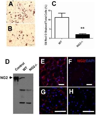 Ablation Of Ng2 Proteoglycan Leads To Deficits In Brown Fat Function And To Adult Onset Obesity