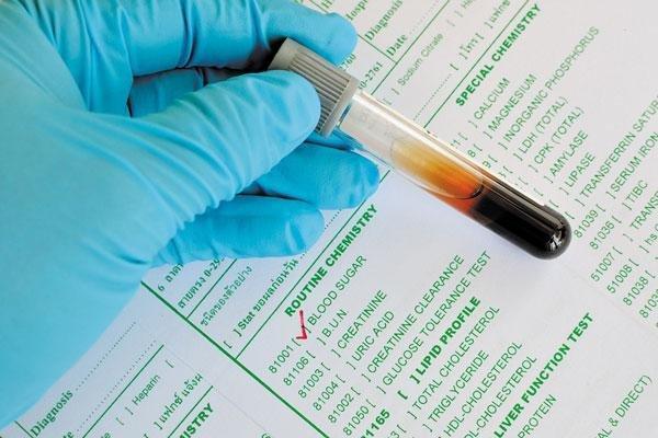 Rising Blood Sugar: How To Turn It Around
