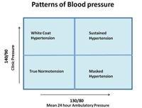 How Does Diabetes Cause Hypertension Pathophysiology