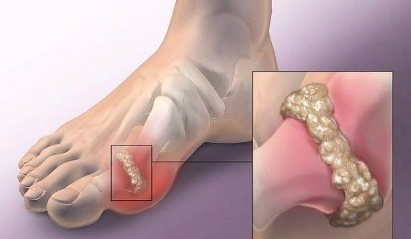 Gout and Diabetes: Whats the Connection?