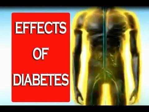 Diabetes Heat Illness