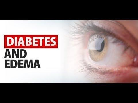 Why Does Diabetes Cause Edema?