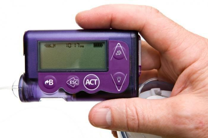 Insulin Pumps 'more Effective Than Injections' For Type 2 Diabetes