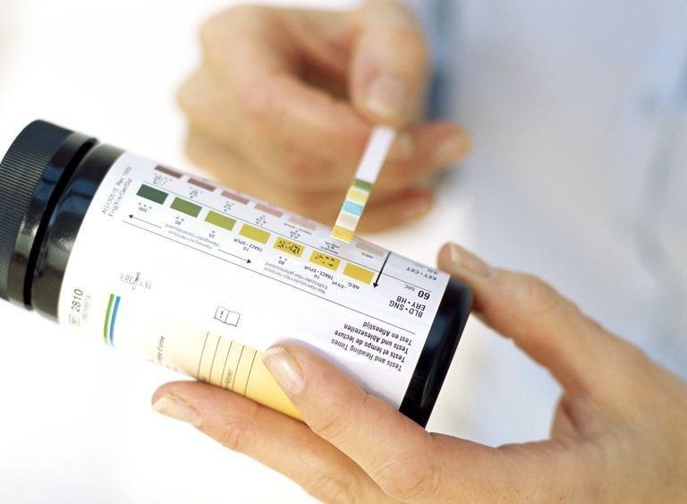 Ketosis Urine Smell: Signs And Symptoms That You Are In Ketosis