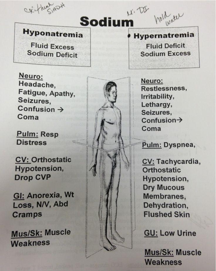 Nclex-rn Prep--hypernatremia Vs Hyponatremia | Ati Nursing | Pinterest | Nclex Rn, Nclex And Hyponatremia