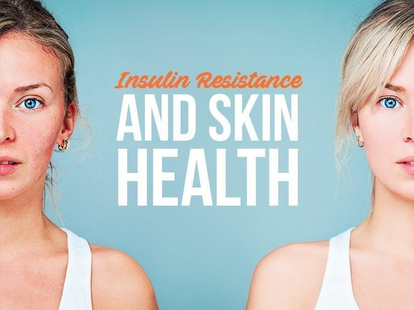 Insulin Resistance And Skin Health