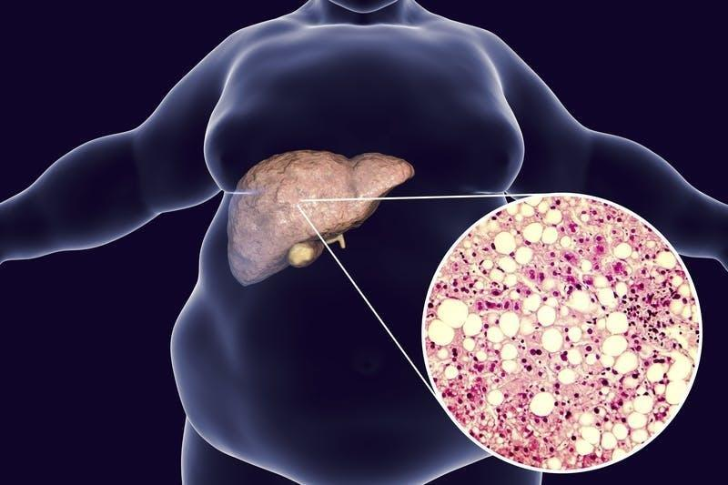 Low Carb As A Treatment For Fatty Liver Diet Doctor