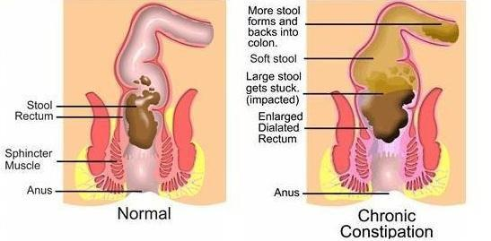 Diabetes & Constipation: Can Diabetes Cause Constipation?