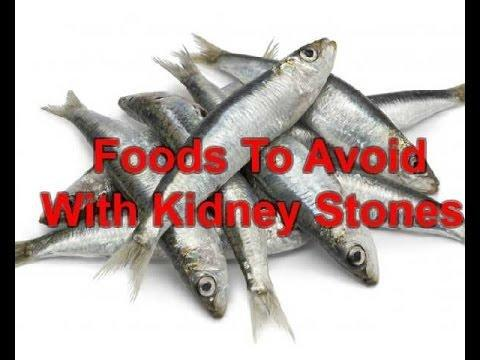 Dangers Of Zero-carb Diets, Iv: Kidney Stones
