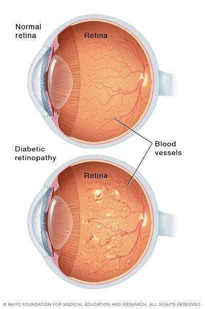 What Is Vision Like With Diabetic Retinopathy?