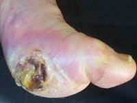 Diabetic Foot Ulcer Complications
