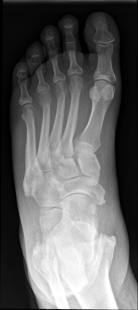 Diabetes Arthritis Foot