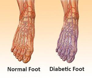 Diabetic Socks - What Are They, And Why Are They Needed?
