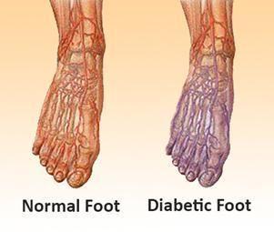 Do Diabetic Socks Help Circulation