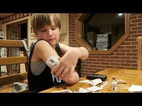 Are Diabetes Contagious
