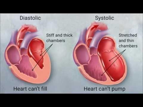 Can Diabetes Cause Congestive Heart Failure?