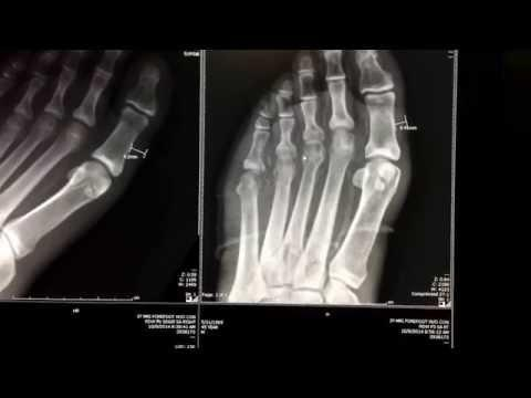 Diabetes Infection Foot