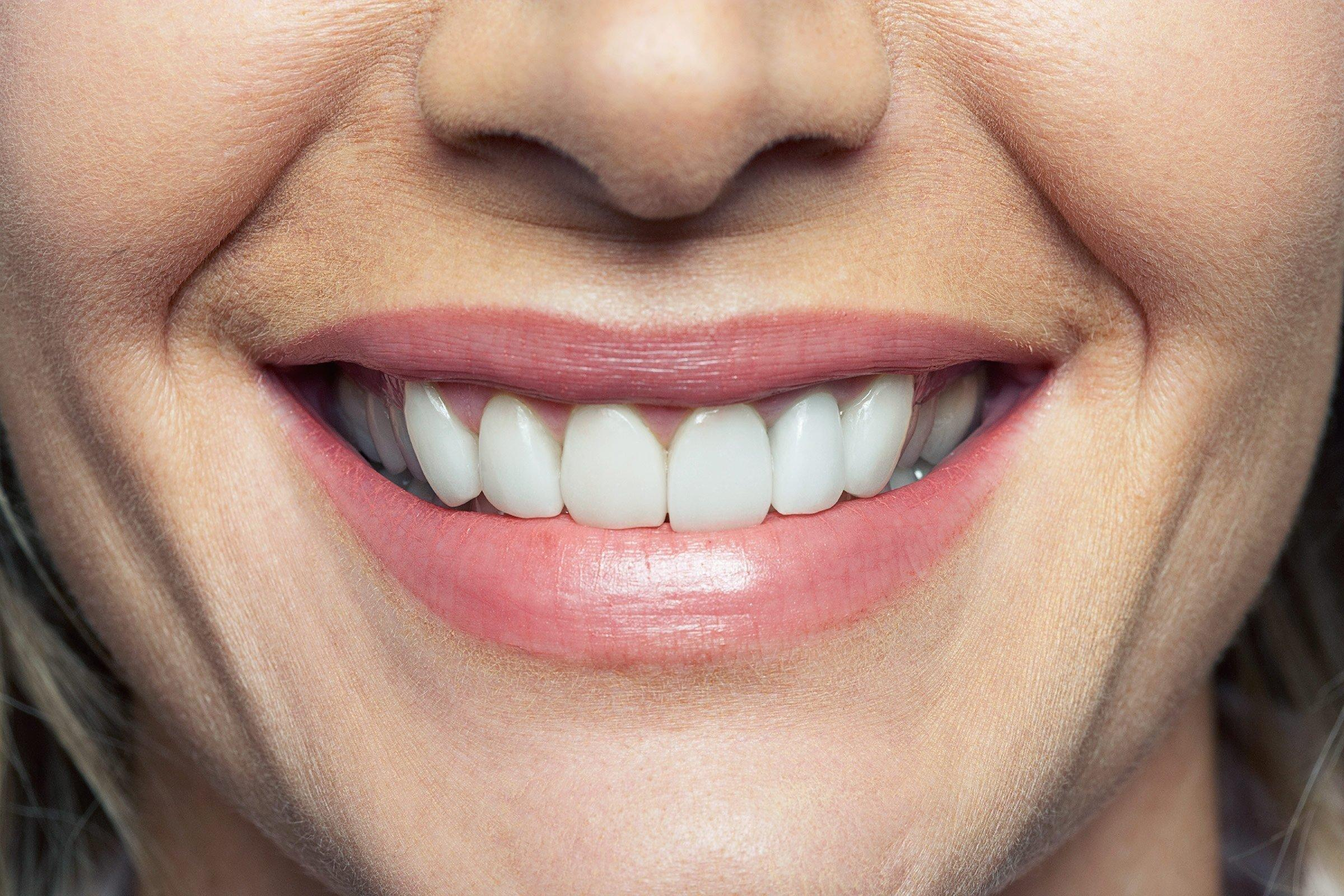 7 Signs Of Disease Your Teeth Can Reveal