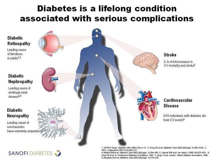 How To Prevent Diabetes And Avoid Complications That Can Kill You