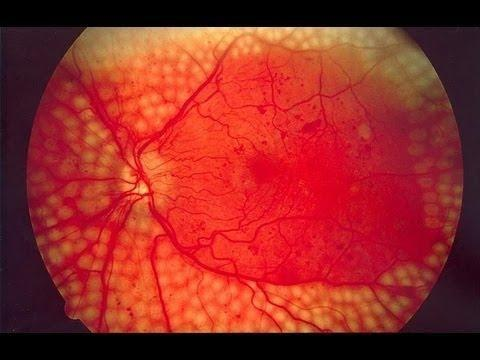 What Diabetes Does To Your Eyes