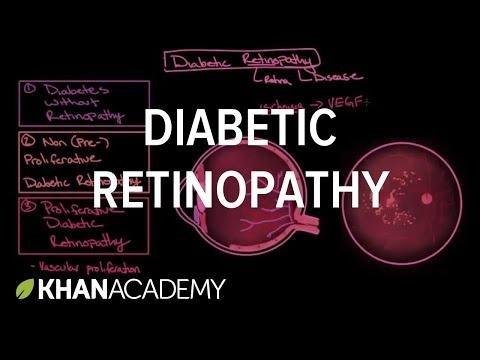 Diabetic Neuropathy Pathophysiology