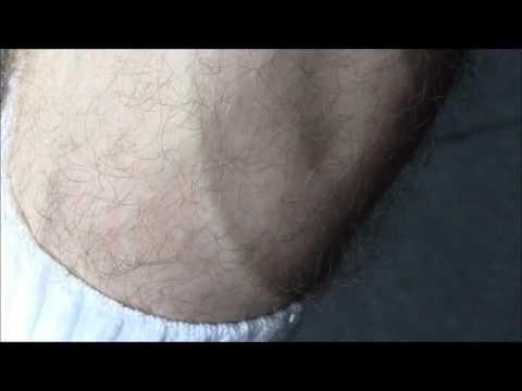 Calf Cramp Cure From A Certified Diabetes Educator
