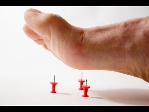 Patient Education: Diabetic Neuropathy (beyond The Basics)
