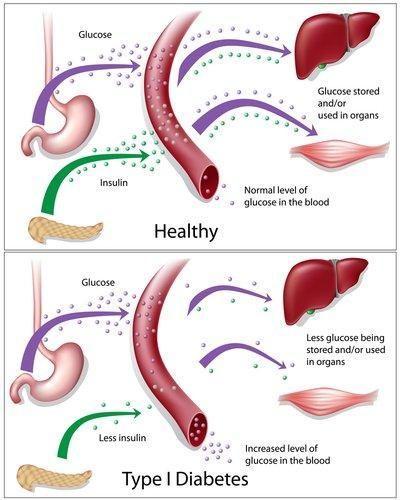 Type 1 Diabetes Facts