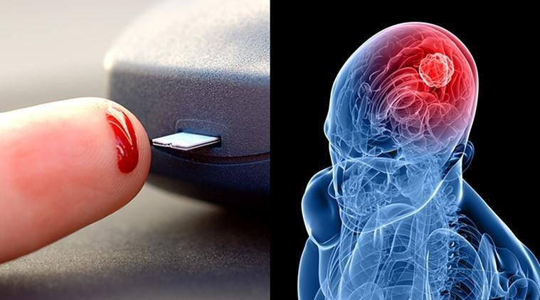 High Blood Sugar Can Lower Risk Of One Type Of Brain Tumour